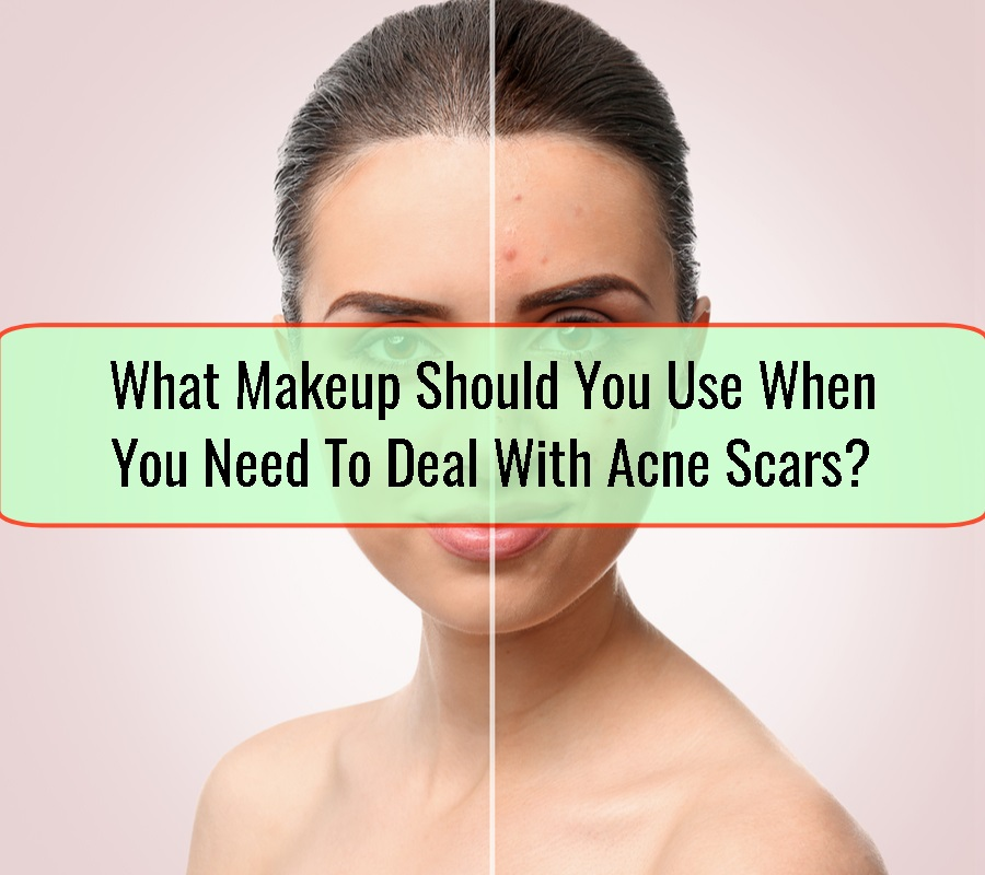 Deal With Acne Scars
